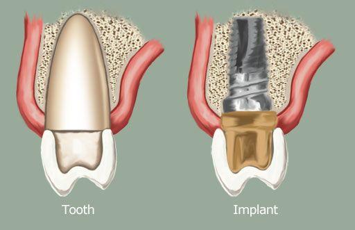 cay_ghep_implant