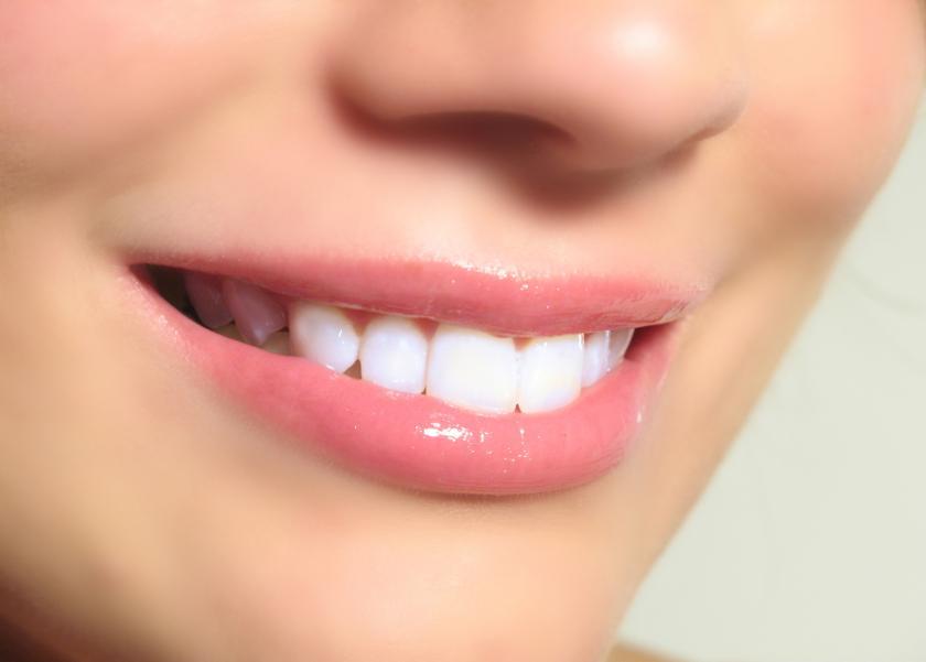 Những chỉ định và lợi ích của việc bọc răng sứ