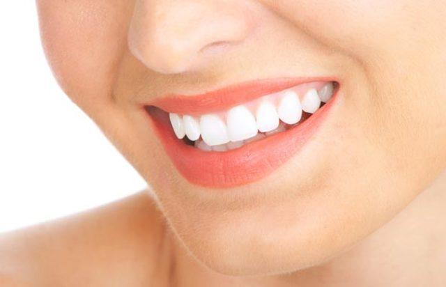 Lợi ích của giải pháp bọc răng sứ