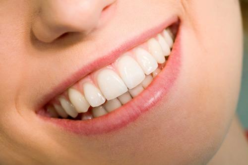 Sau một thời gian bọc răng sứ có thể tẩy trắng không?