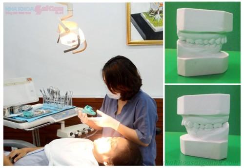 Vậy sau khi sinh con thì bao lâu thì có thể bọc răng sứ được?