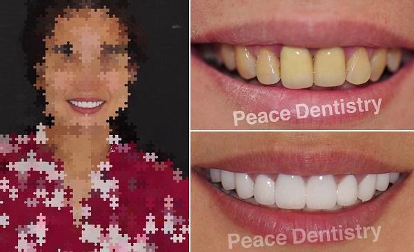 bọc răng sứ thẩm mỹ có hại không