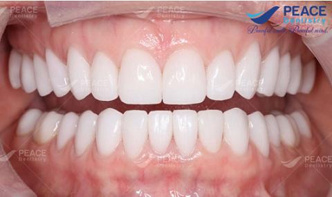Ba dòng răng toàn sứ cao cấp hiện nay?