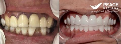thẻ bảo hành răng sứ