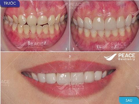 bọc răng toàn sứ cercon bảo hành 10 năm
