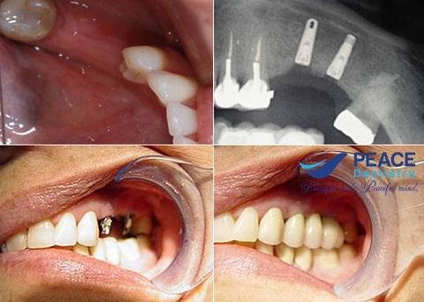 2 phương pháp trồng răng hàm số 7 cố định ưu việt