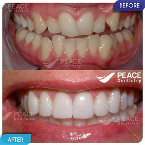 Bọc sứ thẩm mỹ cho răng mọc lệch