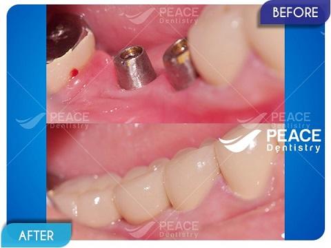 trụ implant tích hợp chắc chắn vào xương hàm